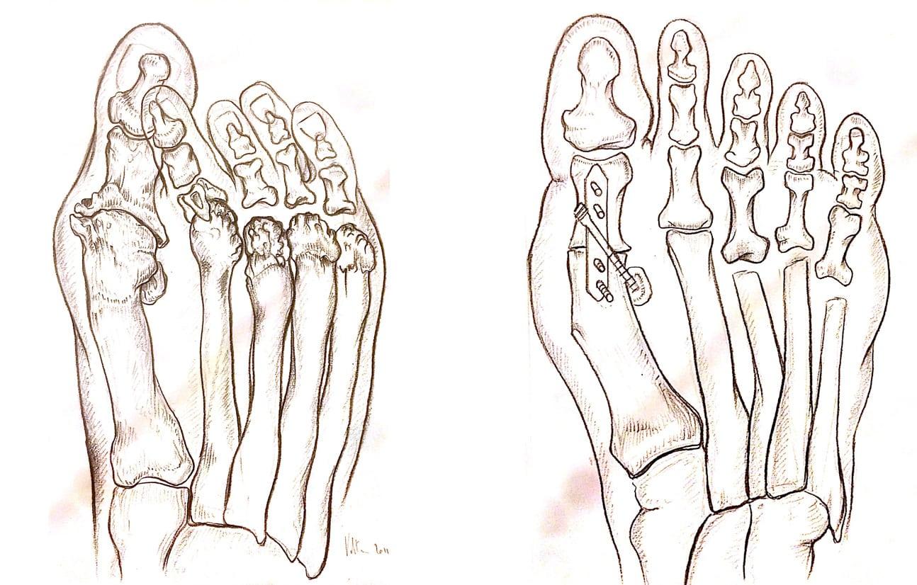 piede reumatico - avampiede reumatoide