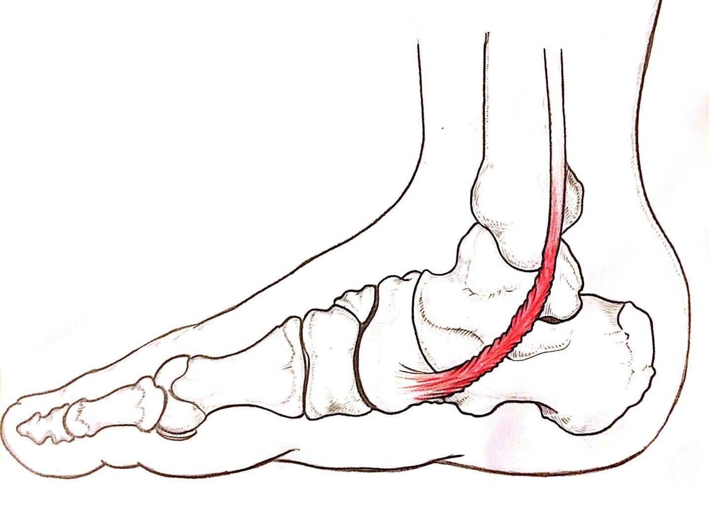tendinite piede tibiale posteriore