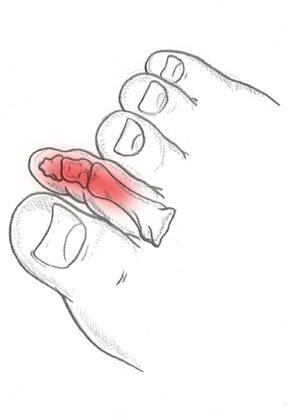 Dita a martello e Patologie del Piede e della Caviglia. Dottor Basile. Medico Chirurgo Specialista in Ortopedia e Traumatologia del Piede e della Caviglia a Roma.