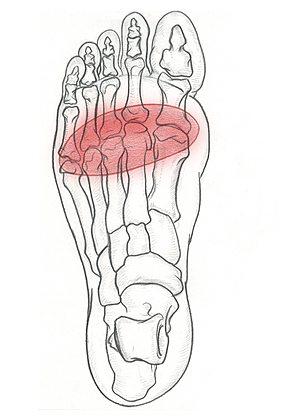 METATARSALGIA e Dolore del Piede - Specialista del piede e della Caviglia Roma - Dottor Attilio Basile
