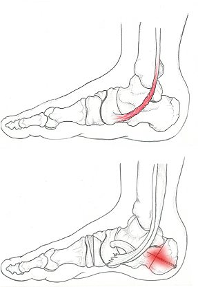 piede piatto e patologie del piede e della caviglia a cura del Dottor Attilio Basile Specialista Medico Chirurgo Ortopedico Roma