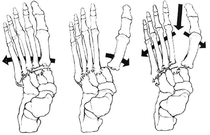 lesioni dell'articolazione tarso-metatarsale(Frattura Lussazione di Lisfranc)