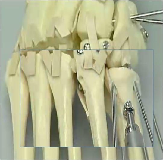trattamento Frattura Lussazione di Lisfranc