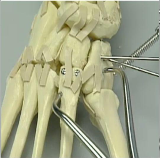 Le lesioni dell'articolazione tarso-metatarsale (Frattura Lussazione di Lisfranc) - Chirurgo Roma Dottor Attilio Basile