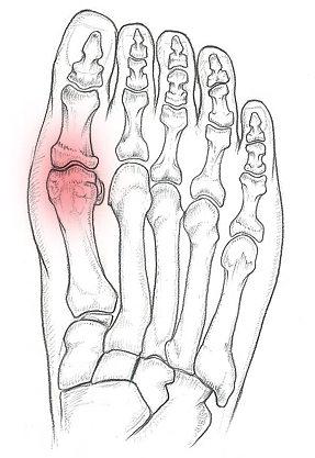 Alluce Rigido Patologie del piede. Prenota una visita con il Dottor Basile. Medico Chirurgo Specialista in Ortopedia e Traumatologia del Piede e della Caviglia a Roma.