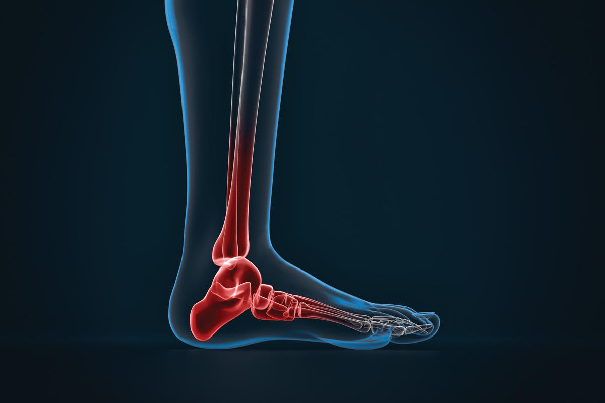 CAVIGLIA REUMATOIDE – ARTRITE REUMATOIDE Dottor Attilio Basile Medico Chirurgo Specialista in Ortopedia e Traumatologia del Piede e della Caviglia Roma