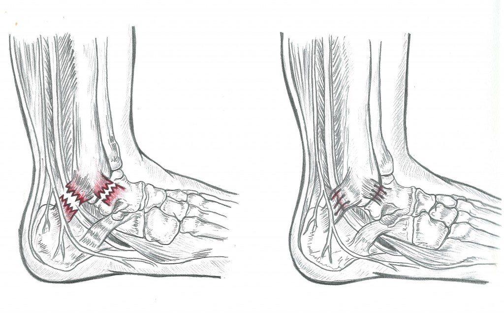Distorsione alla Caviglia - Prenota una visita con il Dottor Basile. Medico Chirurgo Specialista in Ortopedia e Traumatologia del Piede e della Caviglia, Roma.