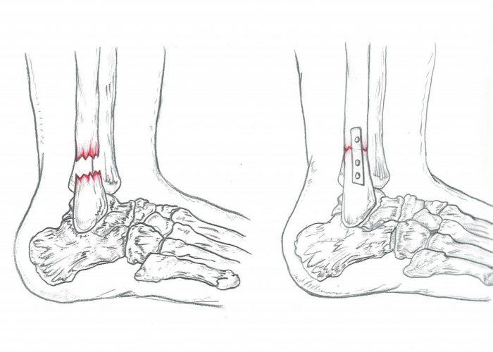 FRATTURA CAVIGLIA Dottor Attiio Basile Medico Chirurgo Specialista in Ortopedia e Traumatologia del Piede e della Caviglia - Roma