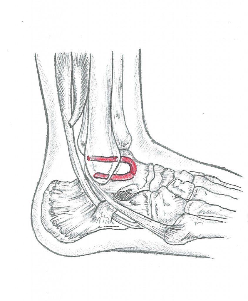 La Cura della Distorsione alla Caviglia - Prenota una visita con il Dottor Basile. Medico Chirurgo Specialista in Ortopedia e Traumatologia del Piede e della Caviglia, Roma.