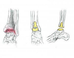 Le cause dell'artrosi alla caviglia - Medico Chirurgo Specialista in Ortopedia e Traumatologia del Piede e della Caviglia Roma - Dottor Attilio Basile