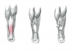 Le patologie del tendine d'Achille