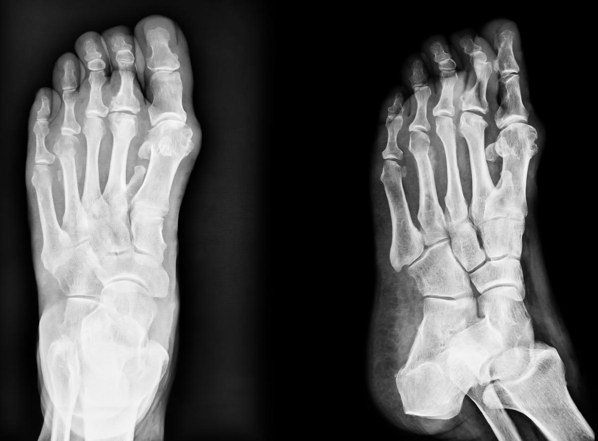 PATOLOGIE DEL PIEDE - TRAUMI E FRATTURE - Dottor Basile. Medico Chirurgo Specialista in Ortopedia e Traumatologia del Piede e della Caviglia a Roma.