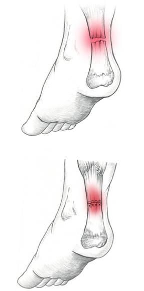 Rottura tendine d'Achille - Dottor Attiio Basile Medico Chirurgo Specialista in Ortopedia e Traumatologia del Piede e della Caviglia - Roma