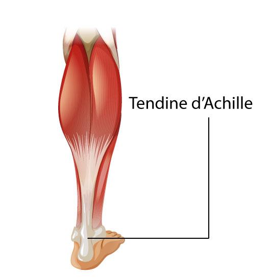 La più comune patologia del tendine d'Achille è la sua infiammazione.