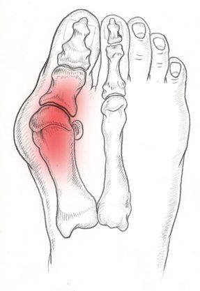 Alluce Valgo Patologie del piede. Prenota una visita con il Dottor Basile. Medico Chirurgo Specialista in Ortopedia e Traumatologia del Piede e della Caviglia a Roma.