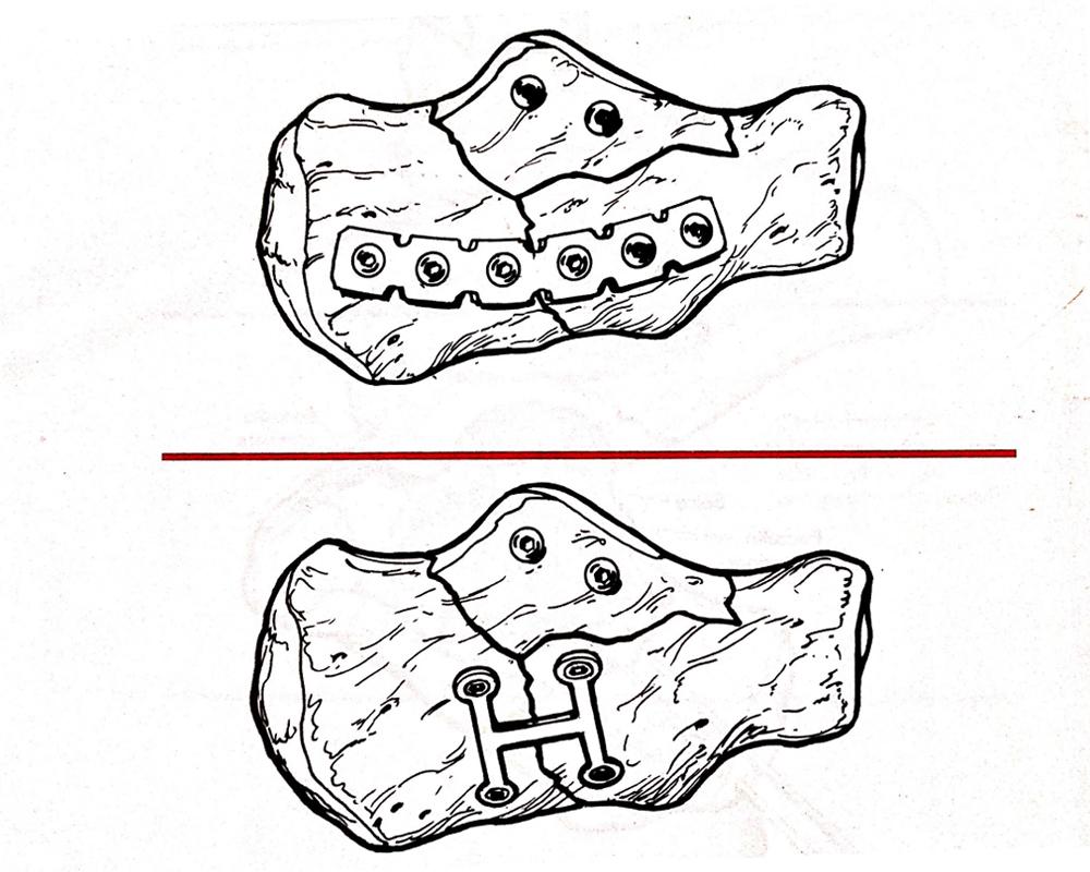 frattura del calcagno - specialista del piede dr. basile