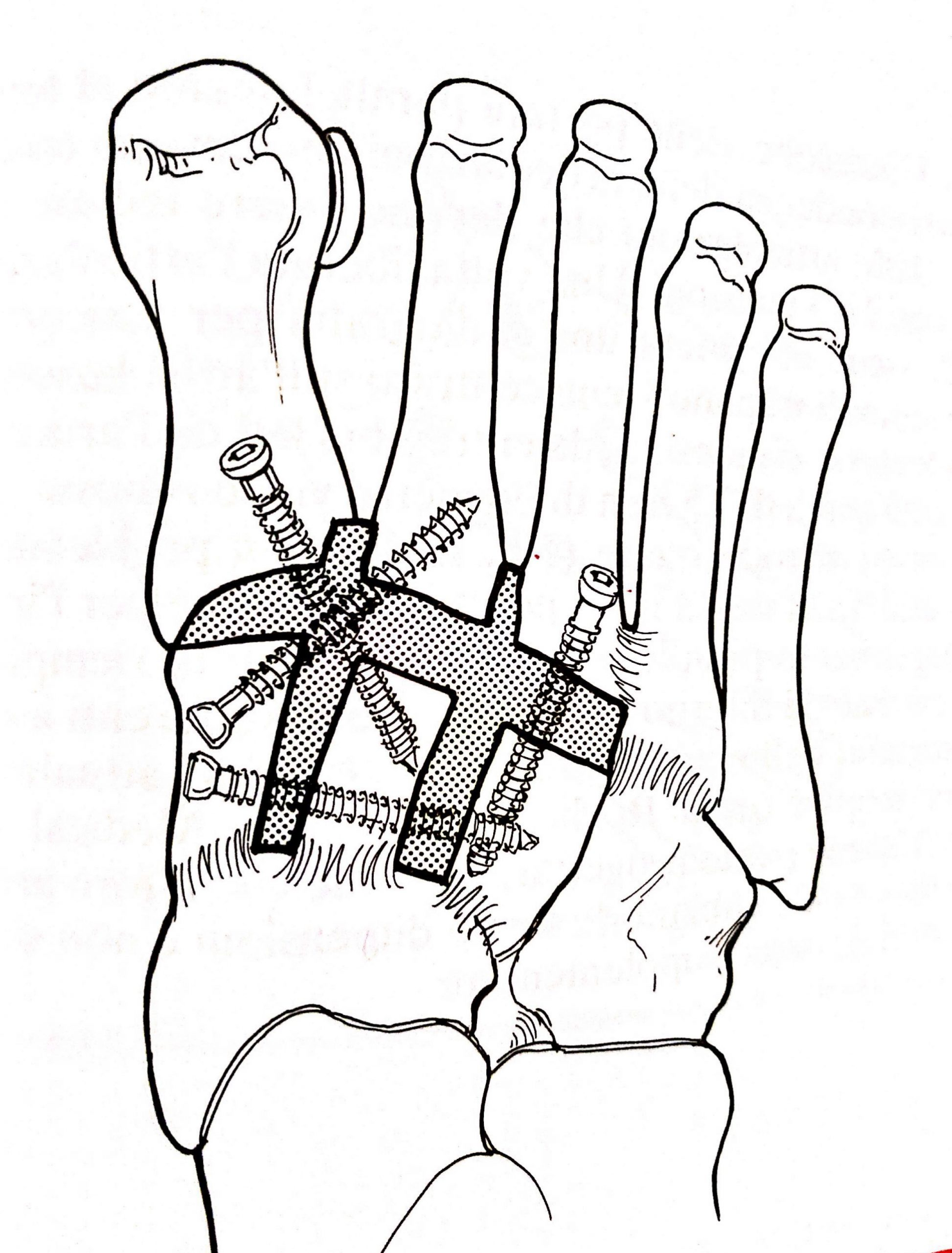 frattura del piede lesione del tarso bassa energia